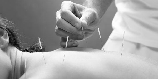 Akupunktur för avslappning