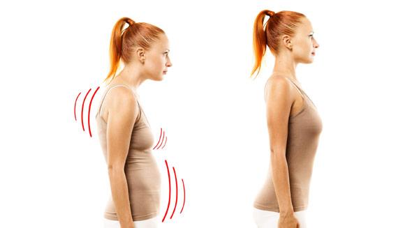 Bild på kvinna med nackont och dålig hållning